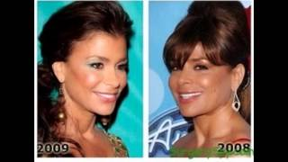 Pastor Paula plastic surgery before and after photos