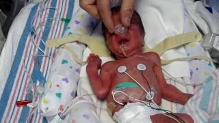 Leo Alexander - Feb 15 2009 - premature baby born at 28 weeks