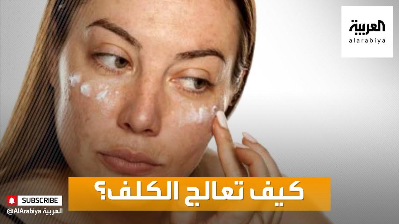 صباح العربية | نصائح للتعامل مع مشكلة الكلف