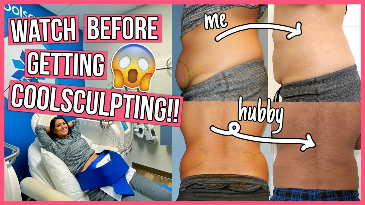 SHOCKING Coolsculpting Before & After 20 Things You NEED to Know
