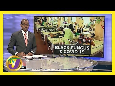 Deadly Black Fungus & Covid   TVJ News - June 2 2021