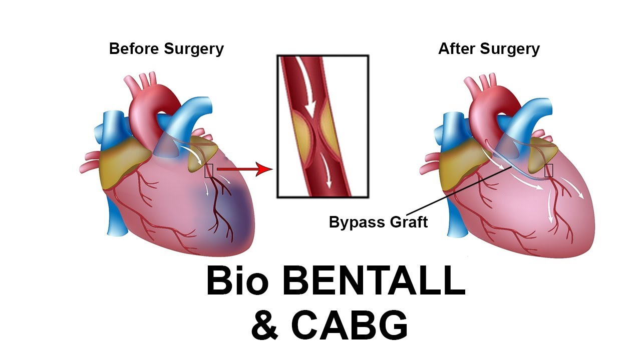 postoperative cabg depression