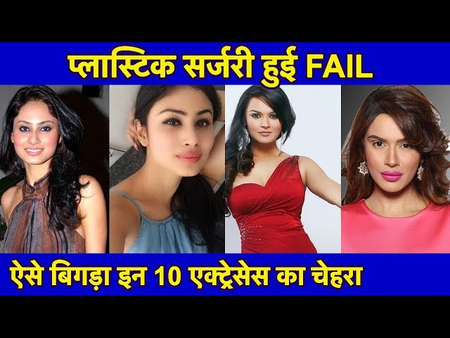 Top 10 TV Actresses जिनकी Plastic Surgery हुई FAIL   Before & After Plastic Surgery SHOCKING LOOK