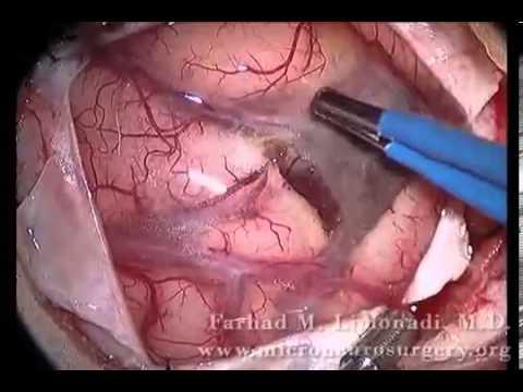 Brain Surgery: Removal of Metastatic Tumor