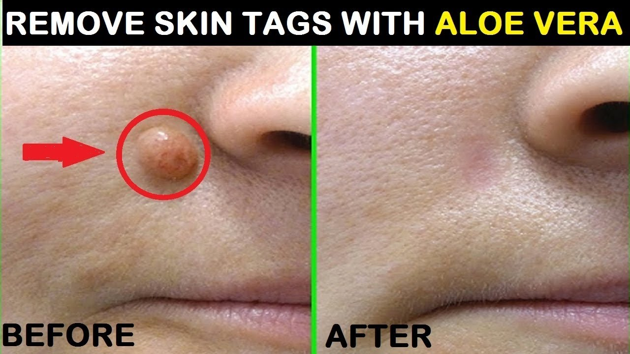 Best Compound W Gel Wart Remover Review Near You