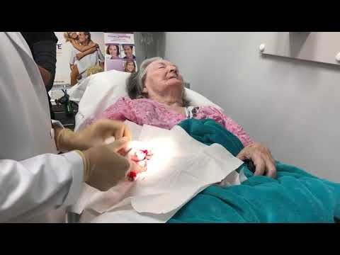 Skin Cancer Removal on Patients Arm