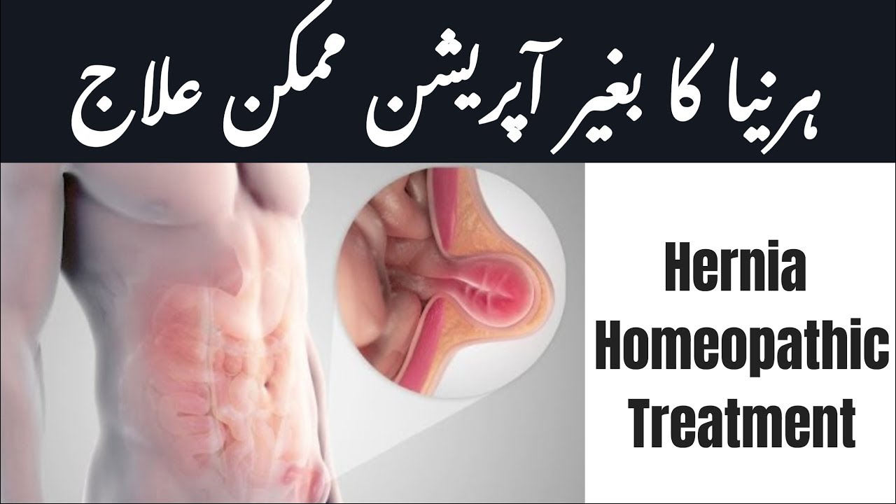 100% Hernia ka ilaj | Homeopathic Medicine for Hernia Treatment by  Homeopathicology