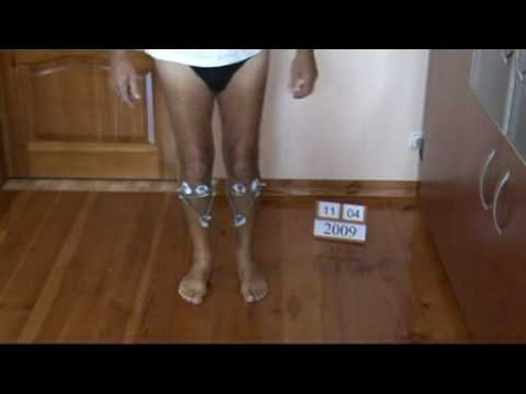 Bow legs correction treatment - UK patient experience