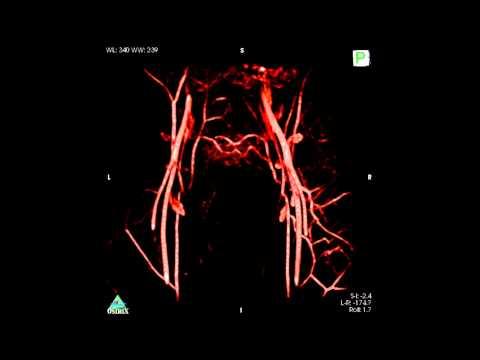 Pelvis MRA based on 3D T1 FSPGR at 1.5T