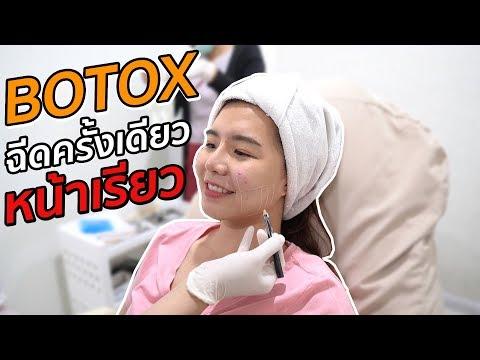 ฉีด Botox ครั้งเดียว หน้าก็เรียวเลย??