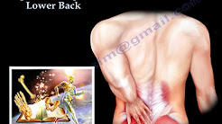 hqdefault - Lower Back Pain Lower Spine