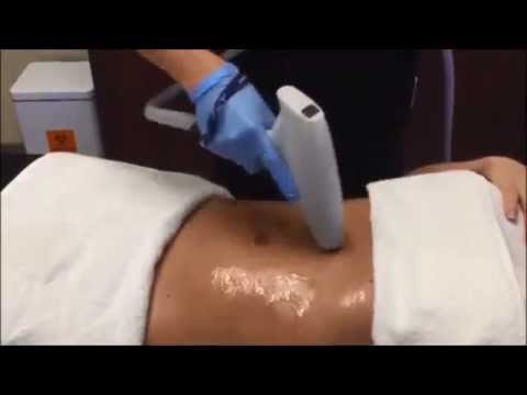 JuVaShape Treatment at The Woodruff Institute for Dermatology & Cosmetic Surgery