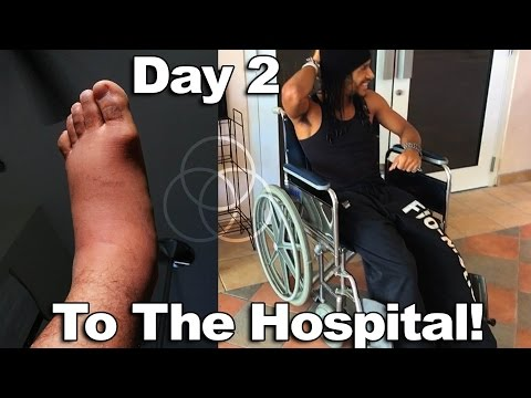 Injured: Part 2 - I Had To Go To The Hospital! (Doc says whats really wrong with my ankle) | VLOG 05