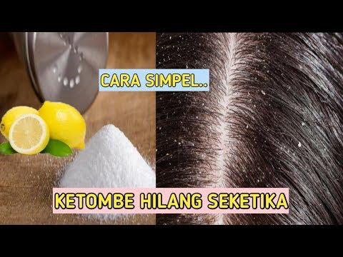 cara menghilangkan ketombe dengan garam, cara menghilangkan ketombe dengan jeruk nipis, cara menghil.