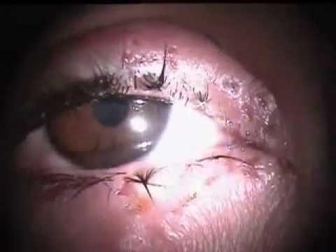 Herpes simplex of eye