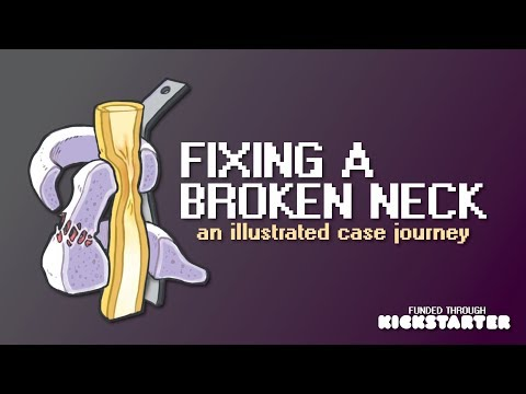 Fixing a broken neck - an illustrated case journey