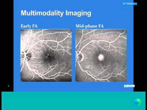 Clinical Applications of Diagnostic Advances in Retinal Imaging