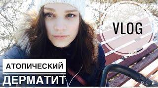 VLOG #1 - Весне дорогу! Атопический дерматит: наш опыт лечения - Semenova LIVE