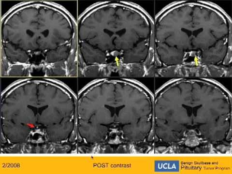 Missed Acromegaly - Pre- Operative Imaging  | UCLA Pituitary Tumor Program