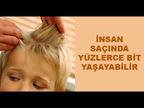 Canlı Saç Biti Ve Sirke Görüntüleri Youtube