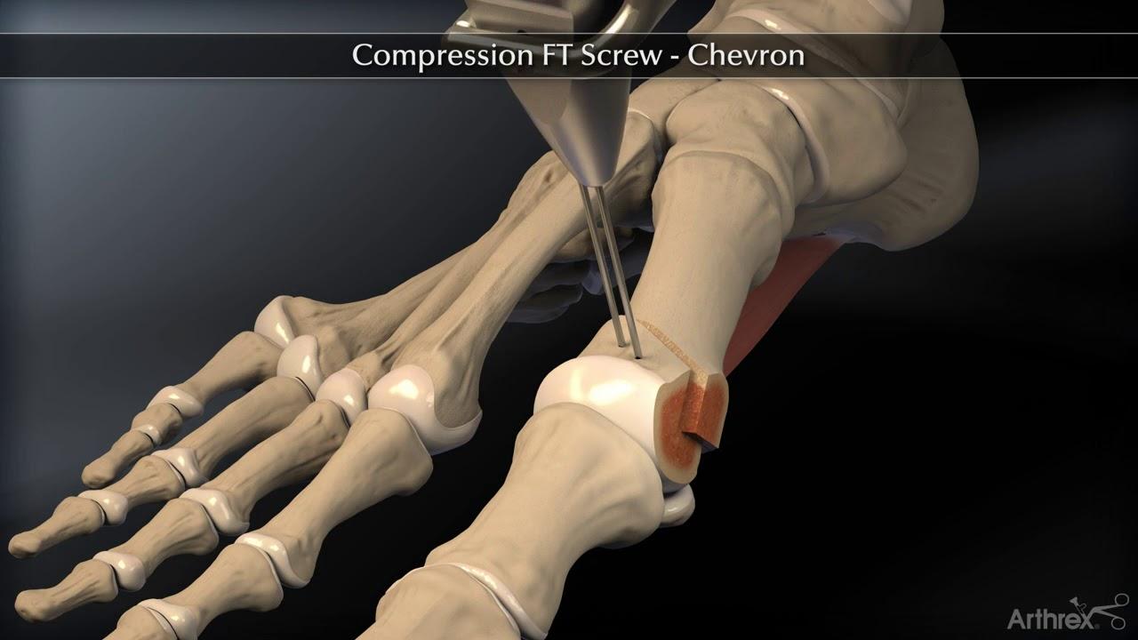 stadiile de deformare a artrozei articulației gleznei)