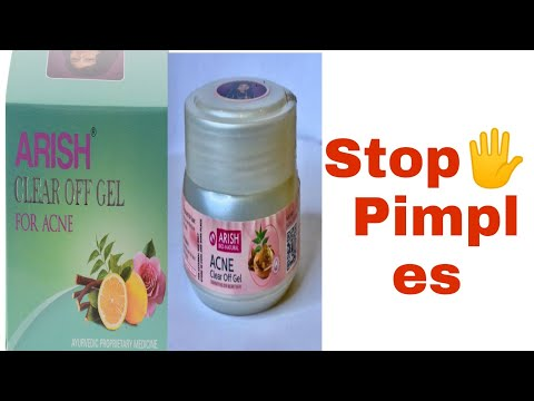 Arish acne clear off gel review in Bengali
