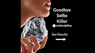 COOLSCULPTING Las Vegas Fat Freezing on the Chin, Summerlin-Henderson NV