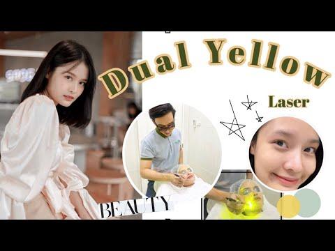 หน้าขาวใส เห็นผลทันทีด้วย Dual Yellow Laser | Bellie Belle