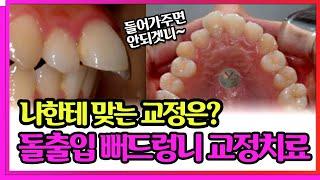 돌출입 교정? 추천드립니다.  뻐드러진 앞니의 치아교정…