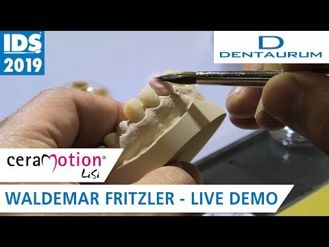 ceraMotion® LiSi auf der IDS 2019: Frontzahn-Veneers