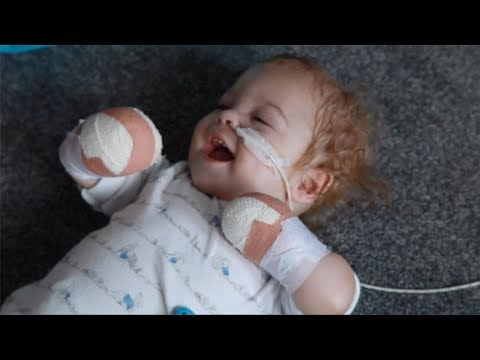Baby Loses Limbs After Developing Sepsis