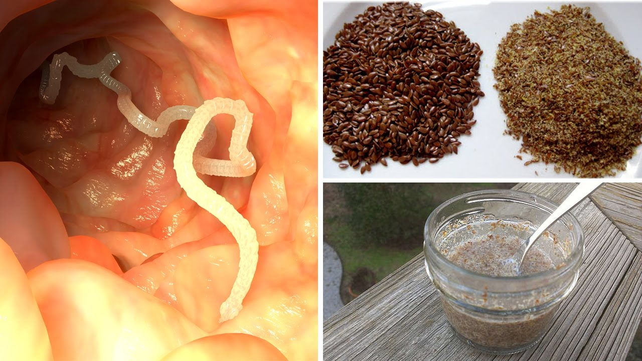 how to get rid of intestinal parasites recipe youtube
