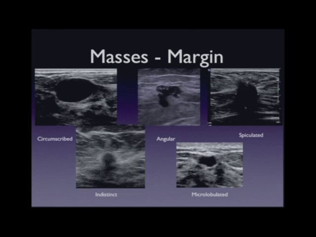 Ultrasound Imaging Of The Breast Lesion Characterization Youtube