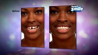 Виниры на зубы   где купить съёмные, цена
