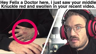 Doctor Reacts To my Injury (serious) - LWIAY #00142