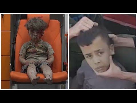 The Truth About the #Syrianboy Viral Photo. Its really a story of two boys. #OmranDaqneesh