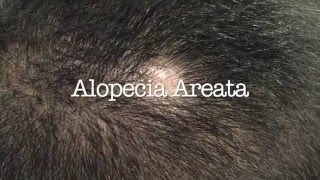 Treatment of hair loss in men and women