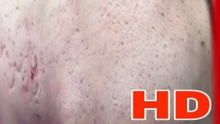 Cystic Acne , Pimples And Blackheads Extraction Treatment On Face !!! ( Part 13 )