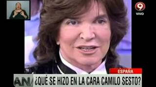 ¿Qué se hizo en la cara Camilo Sesto?