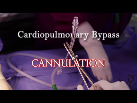 Cardio Pulmonary Bypass (CPB): Cannulation