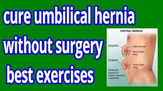 how to cure umbilical hernia without surgery | best exercises for umbilical hernia