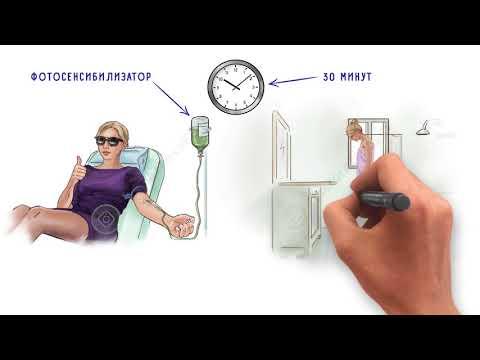 Лечение дисплазии шейки матки методом фотодинамической терапии