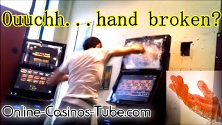 LIFE LEAK hand Fracture ??? Fist the ROULETTE ATM UK Guy cant accept Casino loss