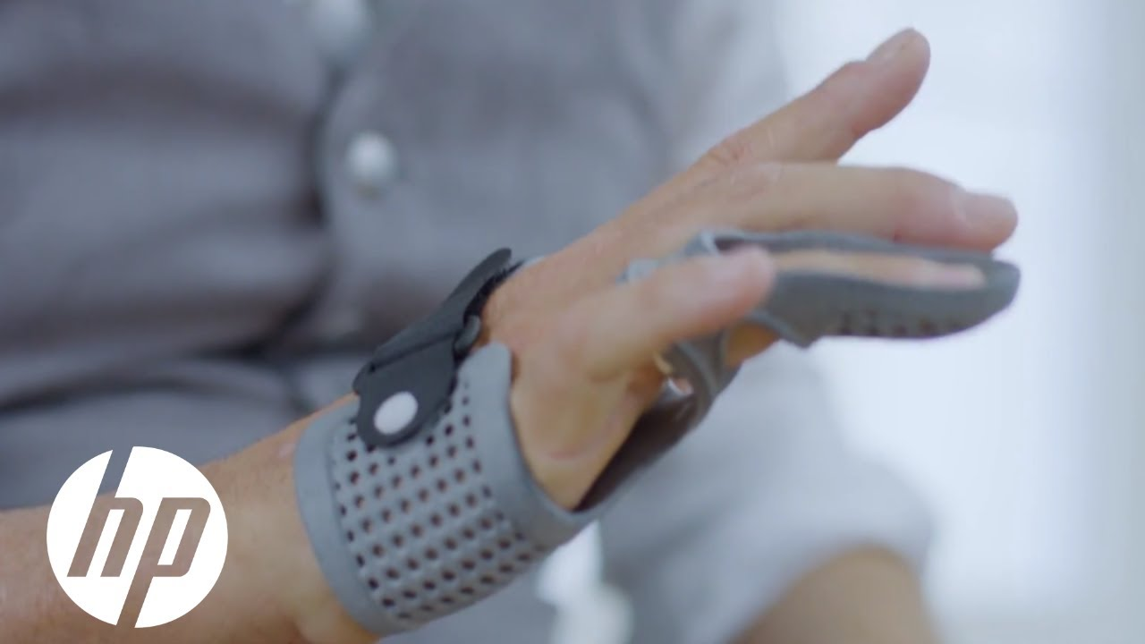 OT4's Hand Orthosis Provides Flexible-Yet-Sturdy Support Thanks to HP 3D HR PA 11 | 3D Printing | HP