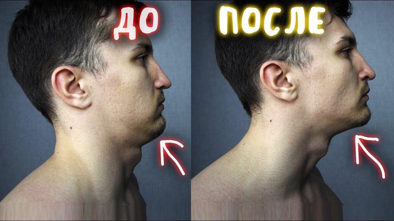 Как Убрать Щеки и Второи Подбородок (КАК) | похудеть в лице быстро упражнения