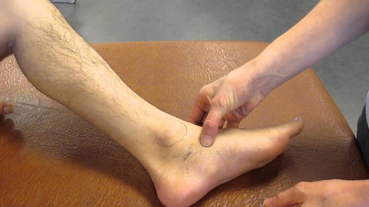 Navicular Tuberosity, Ankle, Palpation - YouTube