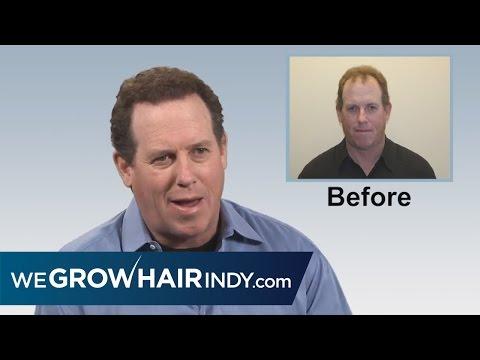 Advantages of Multi Unit Hair Grafting: Jack Trudeau