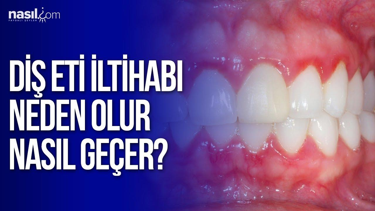 Diş İltihabı Nasıl Geçer: Diş İltihabına Doğal Çözüm