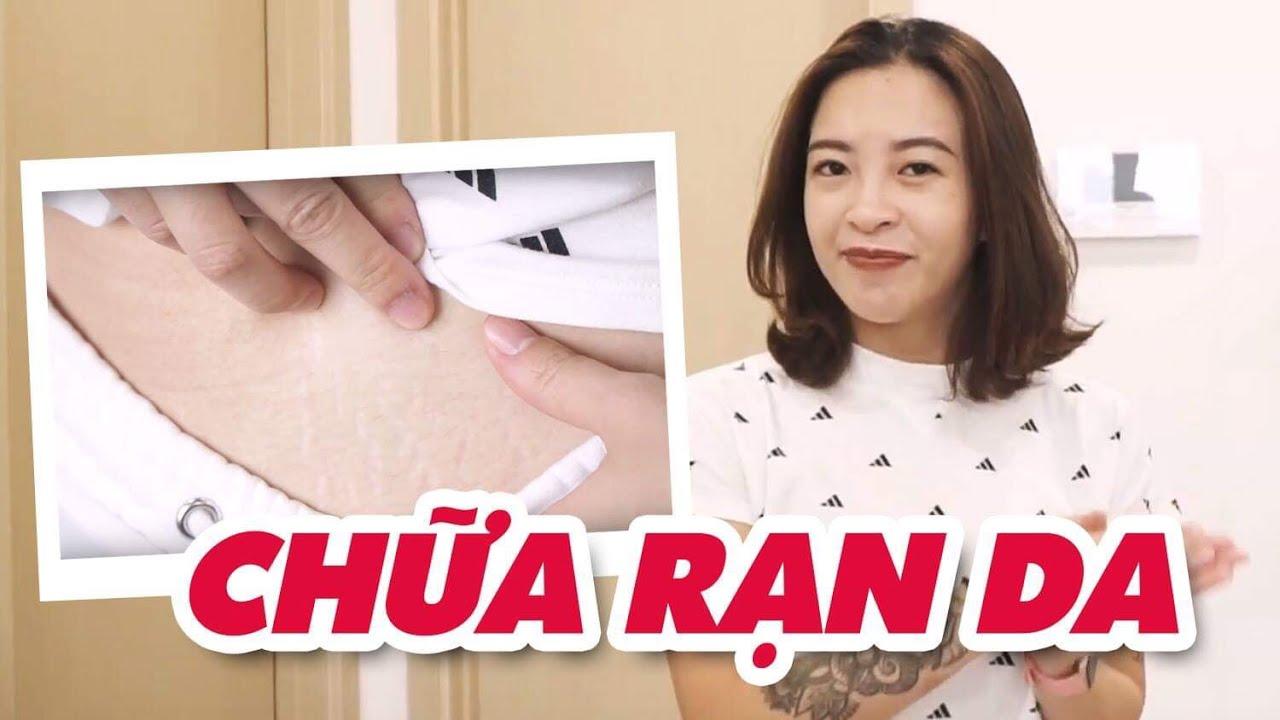 Trị rạn da do dậy thì, mang thai, tăng cân, giảm cân nhanh ♡ Hana Giang Anh