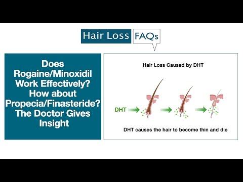 Does Rogaine/Minoxidil Work Effectively? How about Propecia/Finasteride?
